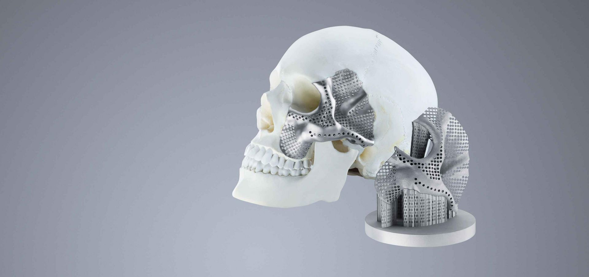 3D printed medical implants for half the world | TRUMPF