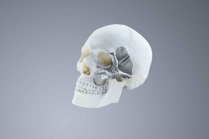 Additively manufactured, individual cranial implants made from titanium
