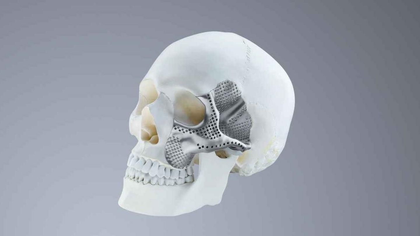 Fabrication additive d'implants crâniens individuels en titane