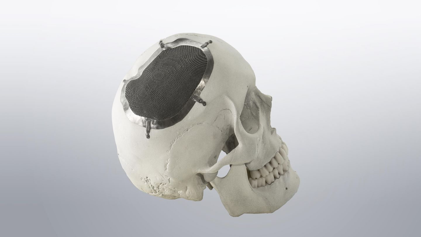 TRUMPF Additive Manufacturing medical application cranial implant
